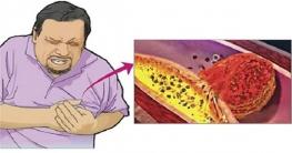 ভ্রান্ত জীবনদৃষ্টি, টেনশন ও স্ট্রেস: হৃদরোগের অন্যতম কারণ